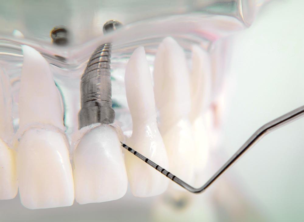 Die zahnärztliche Implantologie ermöglicht hochfunktionellen und ästhetisch ansprechenden Zahnersatz