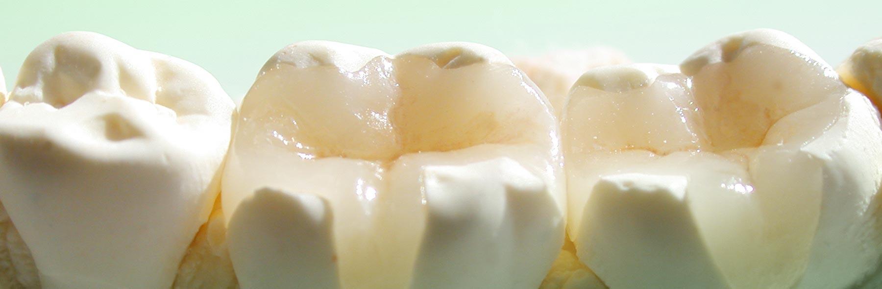 Inlays und Onlays aus Kunstoff (auch Gold oder Keramik) werden bei größeren defekten im Seitenzahnbereich eingesetzt