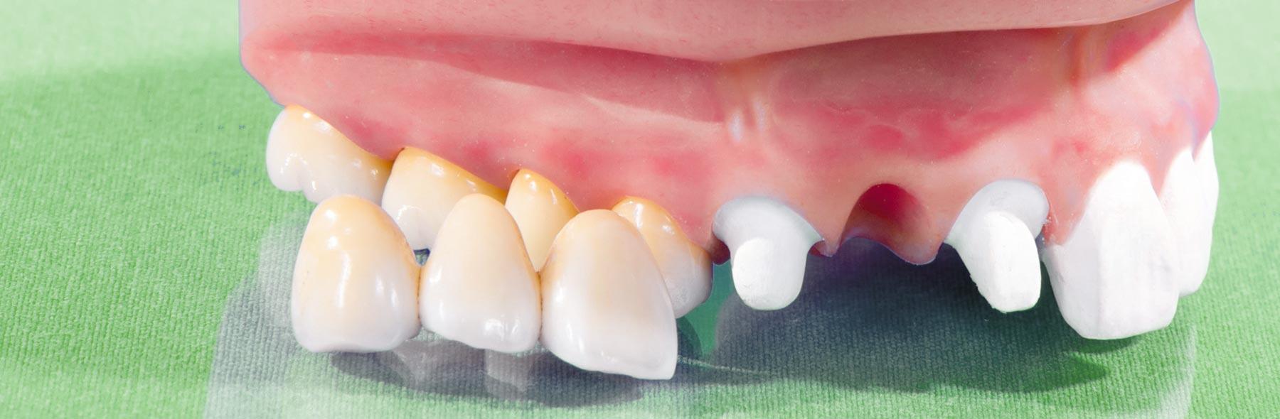 Zahnersatz von funktional bis hochästhetisch